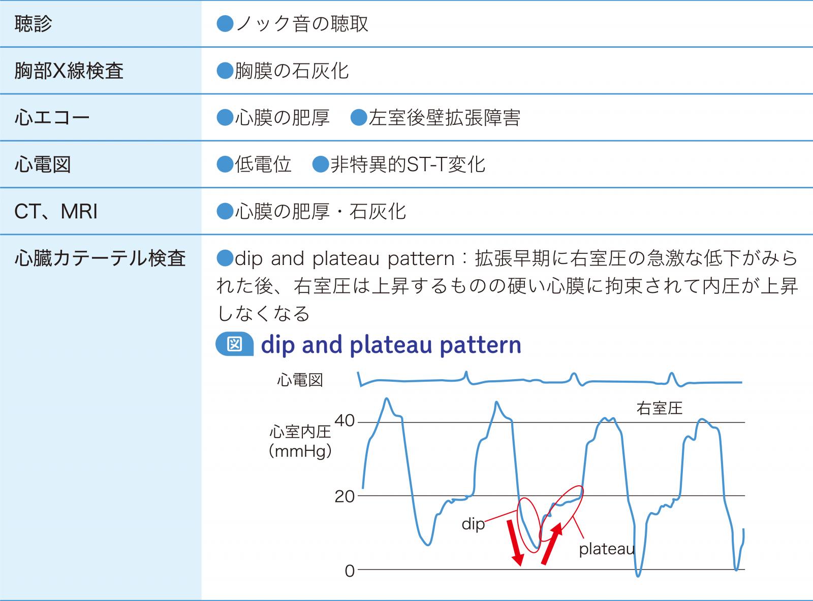 慢性収縮性心膜炎に特徴的な検査所見