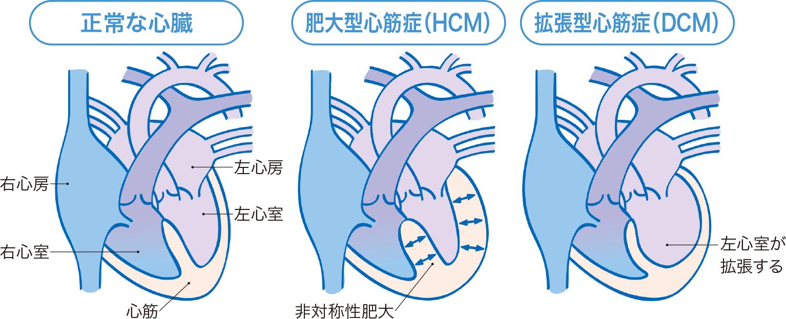 正常な心臓と心筋疾患