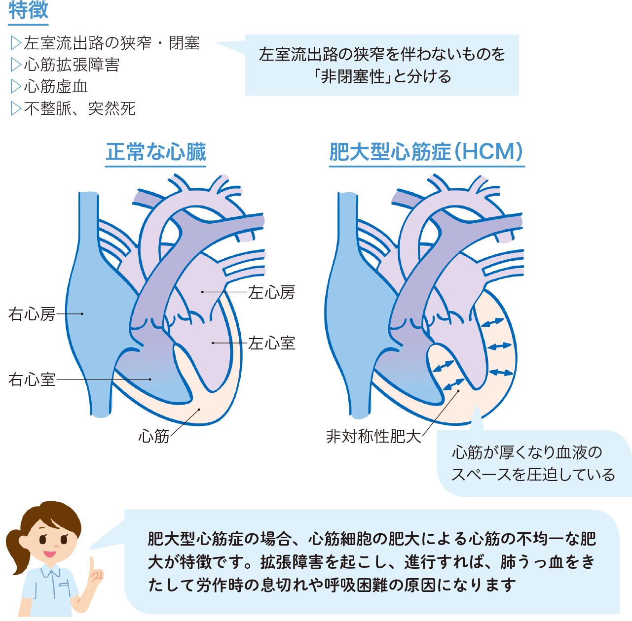 肥大型心筋症の病態