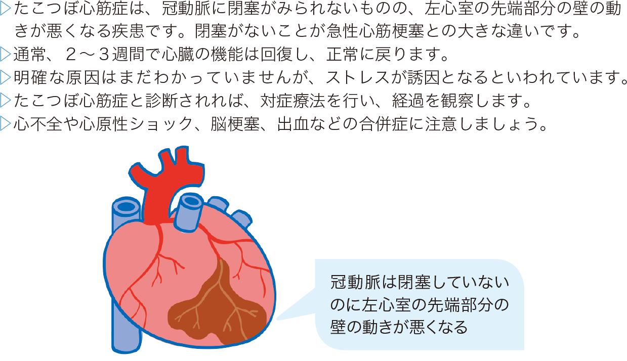 その他の心筋疾患(たこつぼ心筋症)