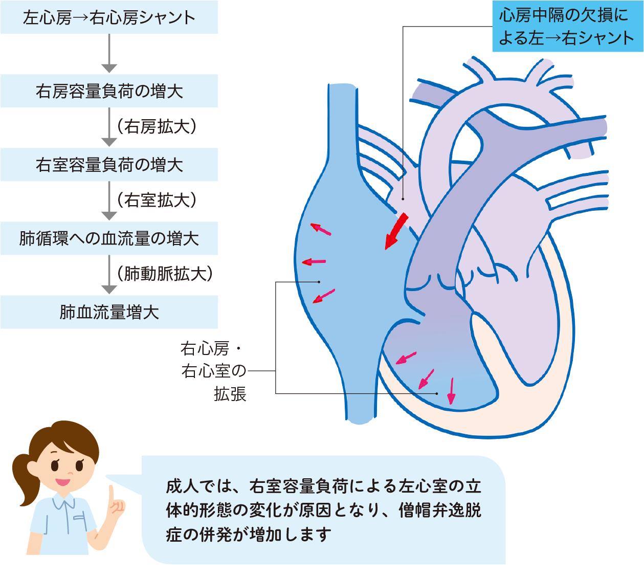 心房中隔欠損症の病態