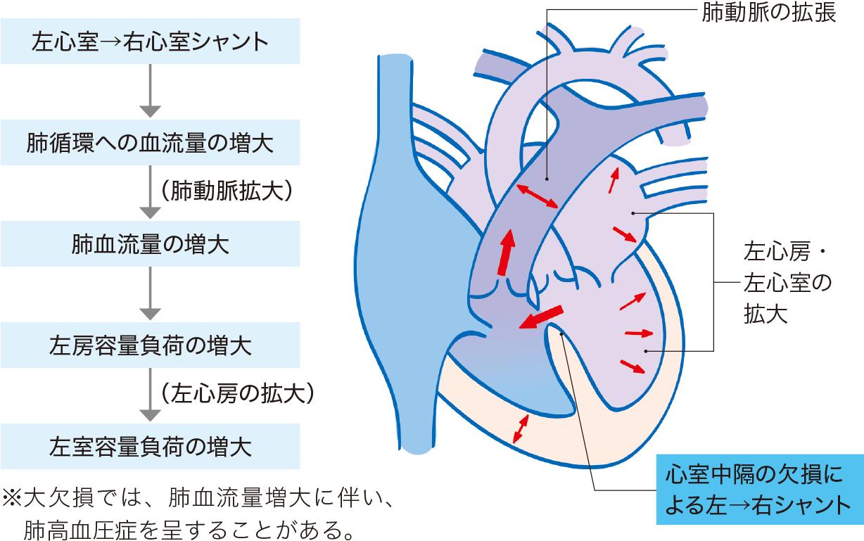 心室中隔欠損症の病態