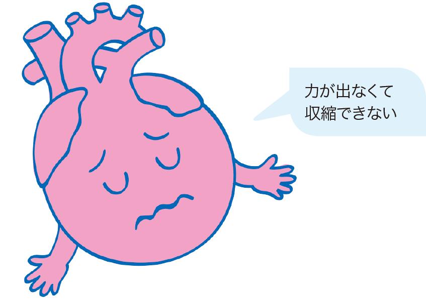 心臓の収縮不全