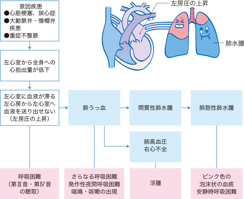 肺うっ血に伴う呼吸症状のメカニズム