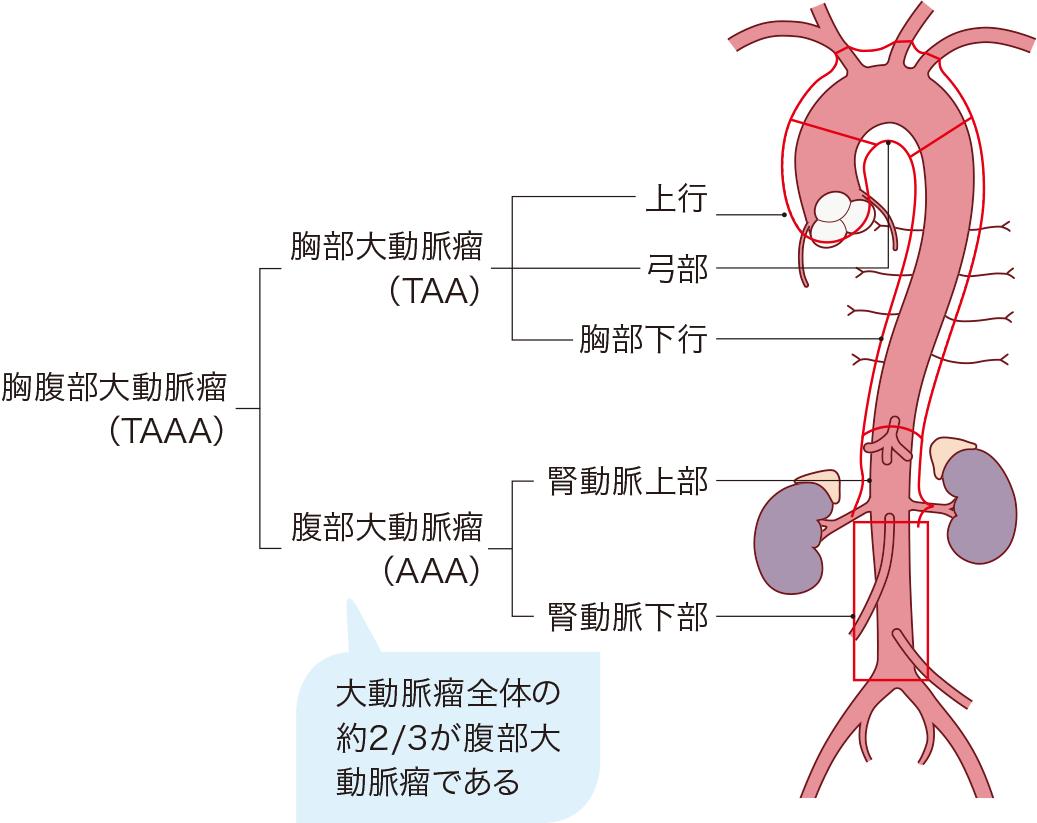 大動脈瘤の発生部位による分類