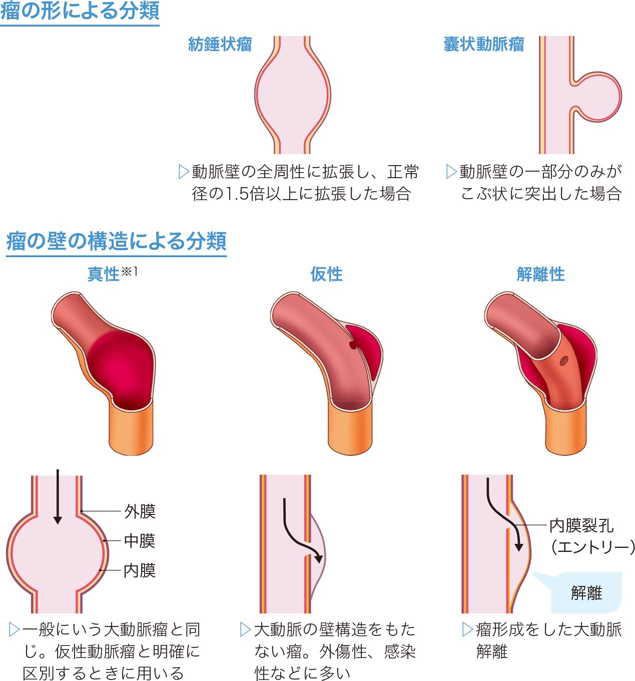 大動脈瘤の分類