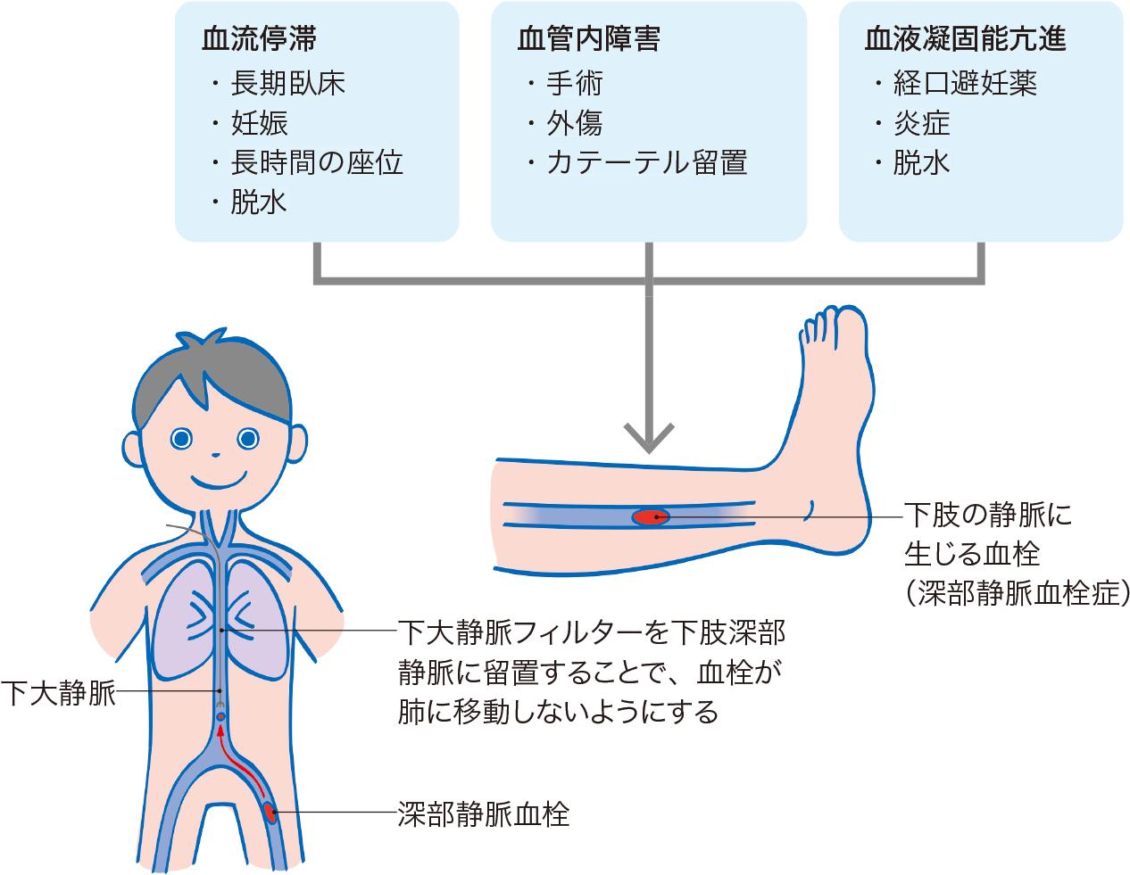 深部静脈血栓形成の病態