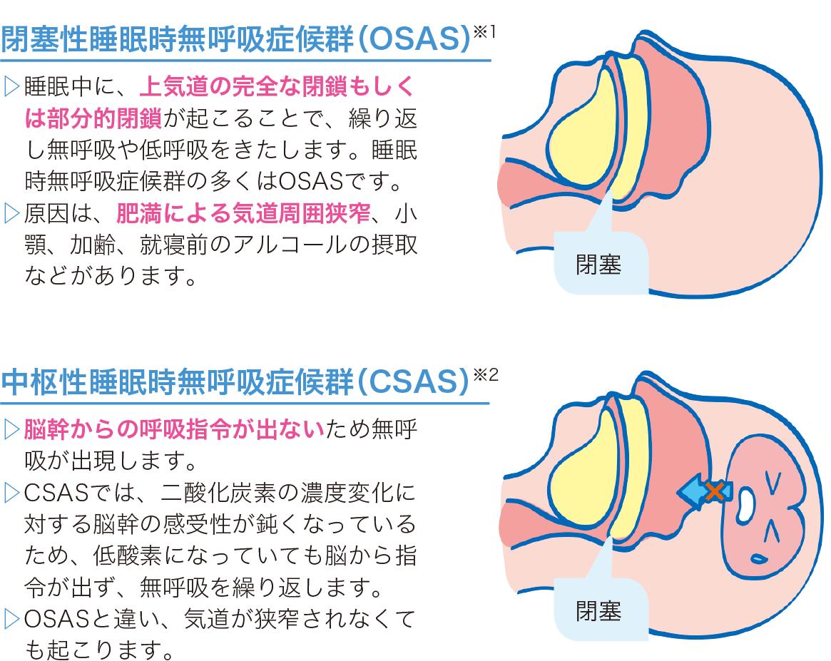睡眠時無呼吸症候群の分類