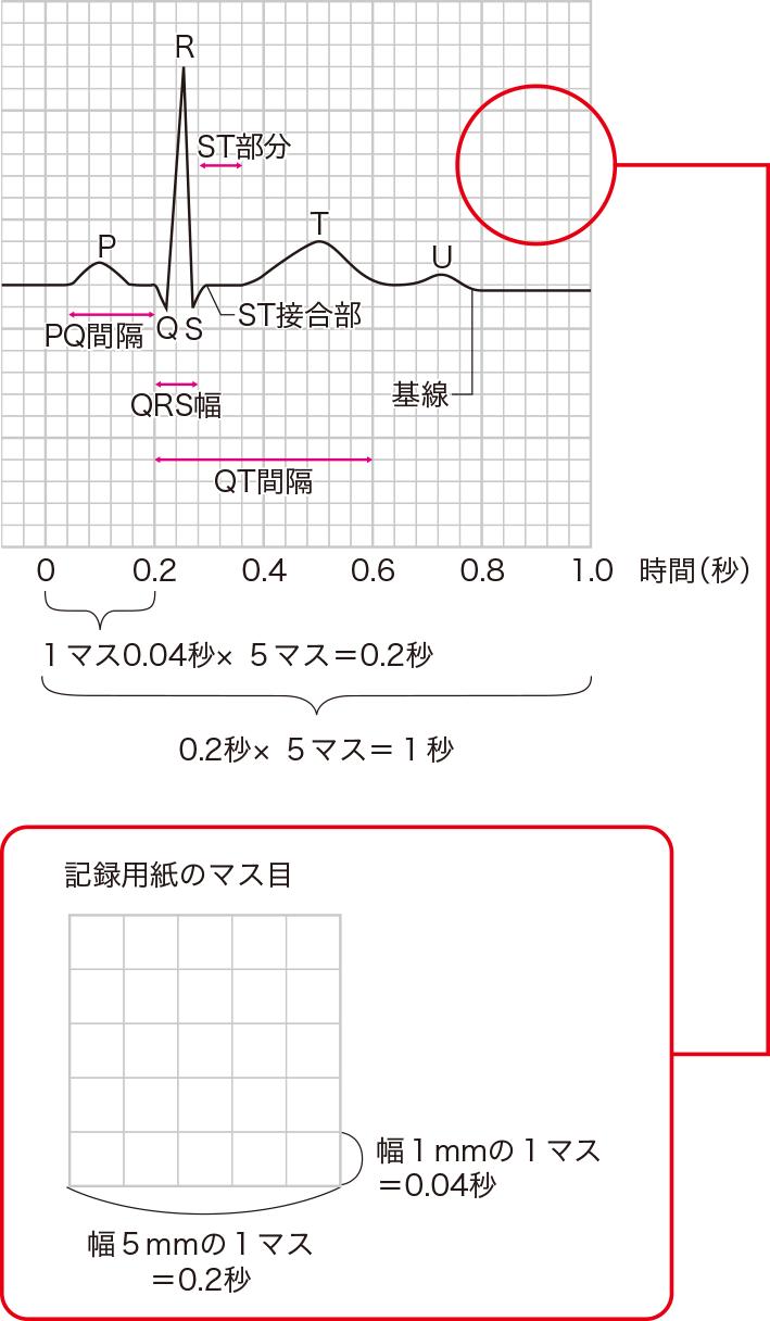 基本の心電図