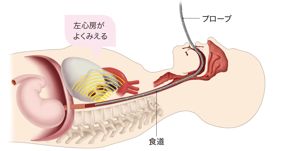経食道心エコー(TEE)のしくみ