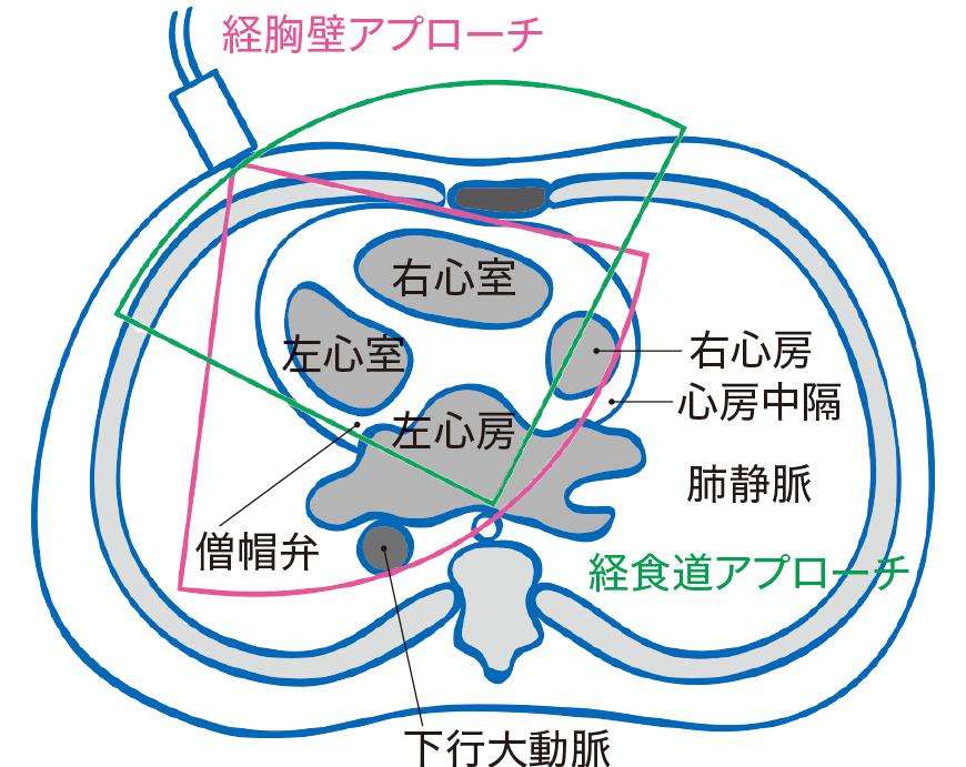 経胸壁心エコーと経食道心エコーの照射部位
