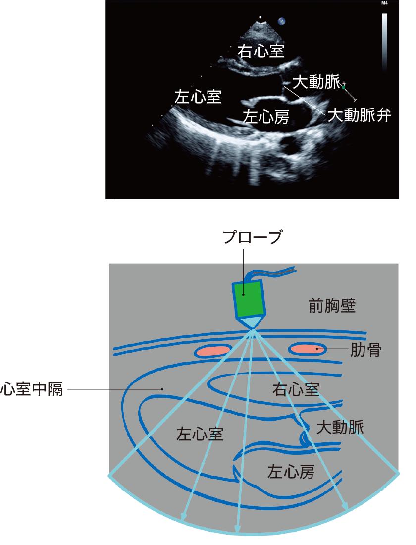 断層心エコー法の基本断面