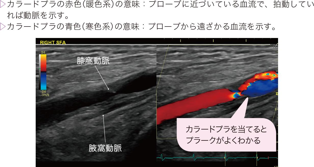 下肢エコー検査画像の例