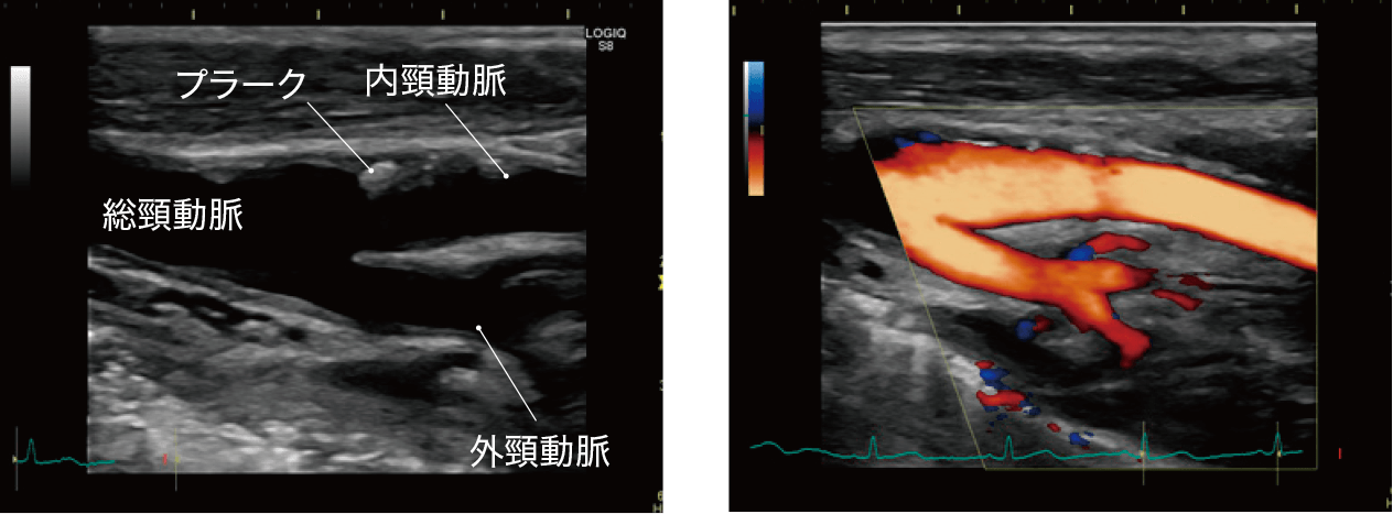 頸動脈エコー検査画像の例
