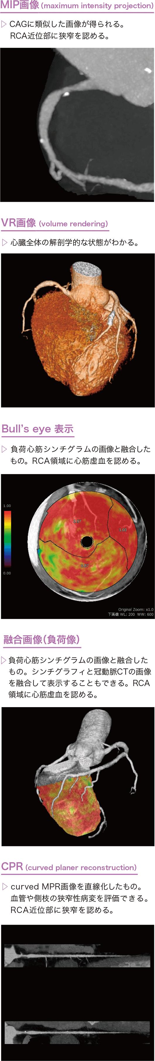 CT画像の例