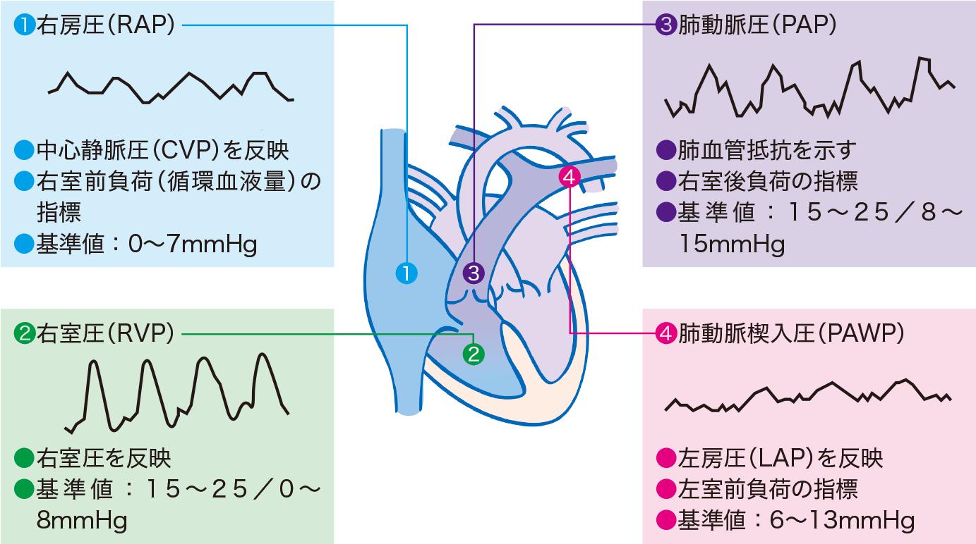 心内圧の基準値とカテーテル先端圧波形・心電図の連動波形