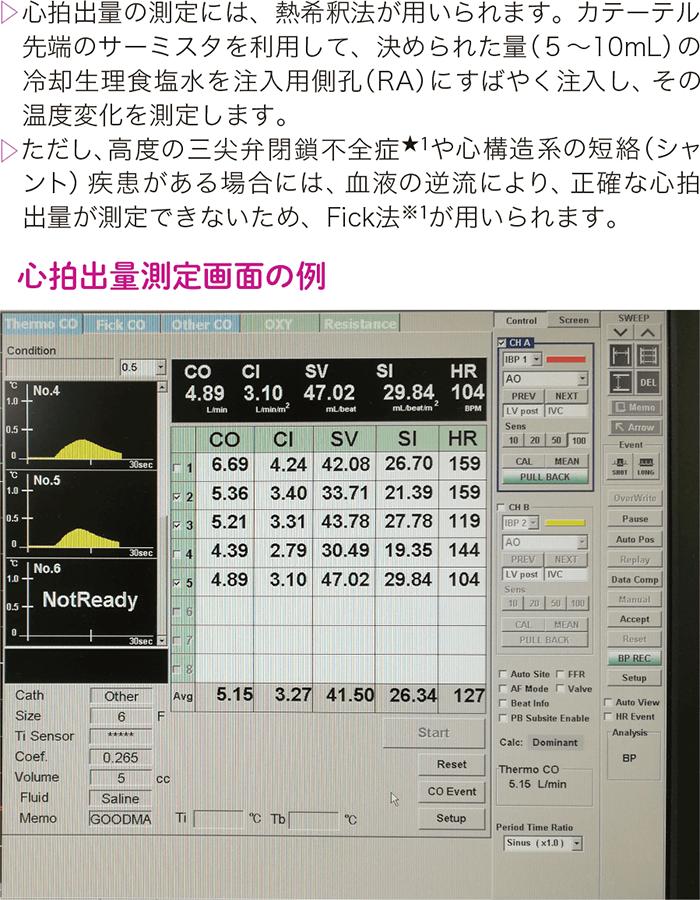 心拍出量の測定方法(熱希釈法)