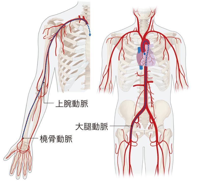 動脈ラインのおもなアプローチ部位