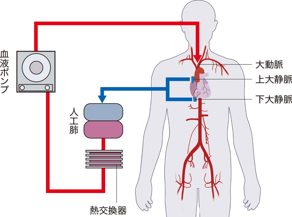 人工心肺の原理としくみ