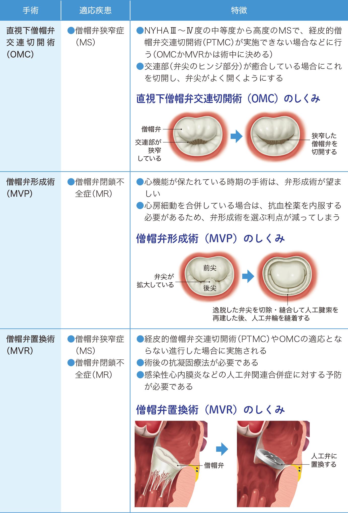 僧帽弁疾患の外科的治療の特徴