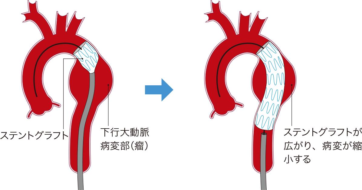 下行大動脈瘤に対するステントグラフト内挿術