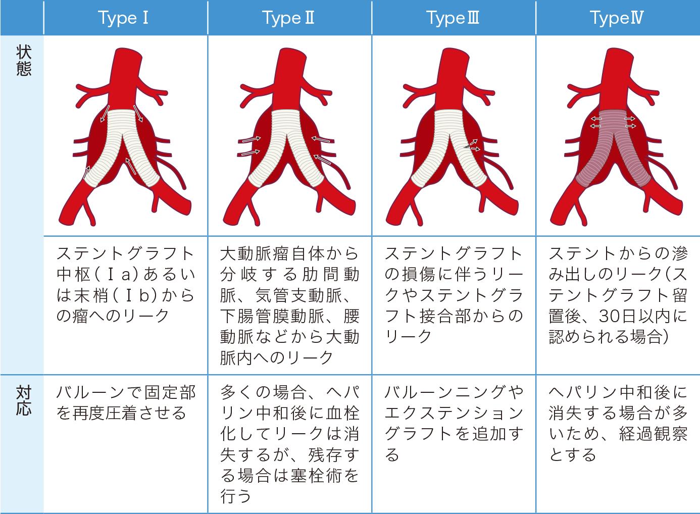 EVAR のエンドリークの分類