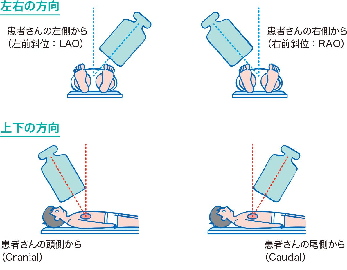 血管造影検査の撮影方向