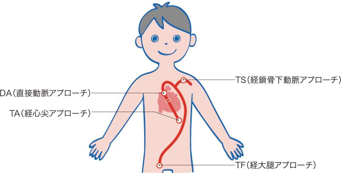 経カテーテル大動脈弁植込み術(TAVI)のアプローチの部位