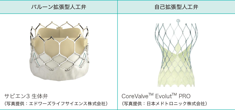 TAVI弁の種類