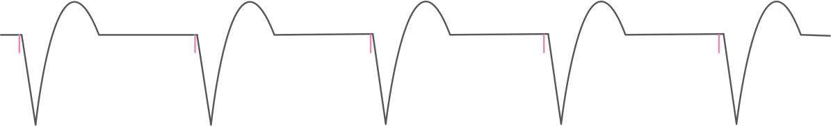 VVI,ペースメーカ,心電図