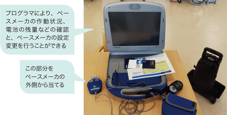 ペースメーカーの電池残存量の確認方法