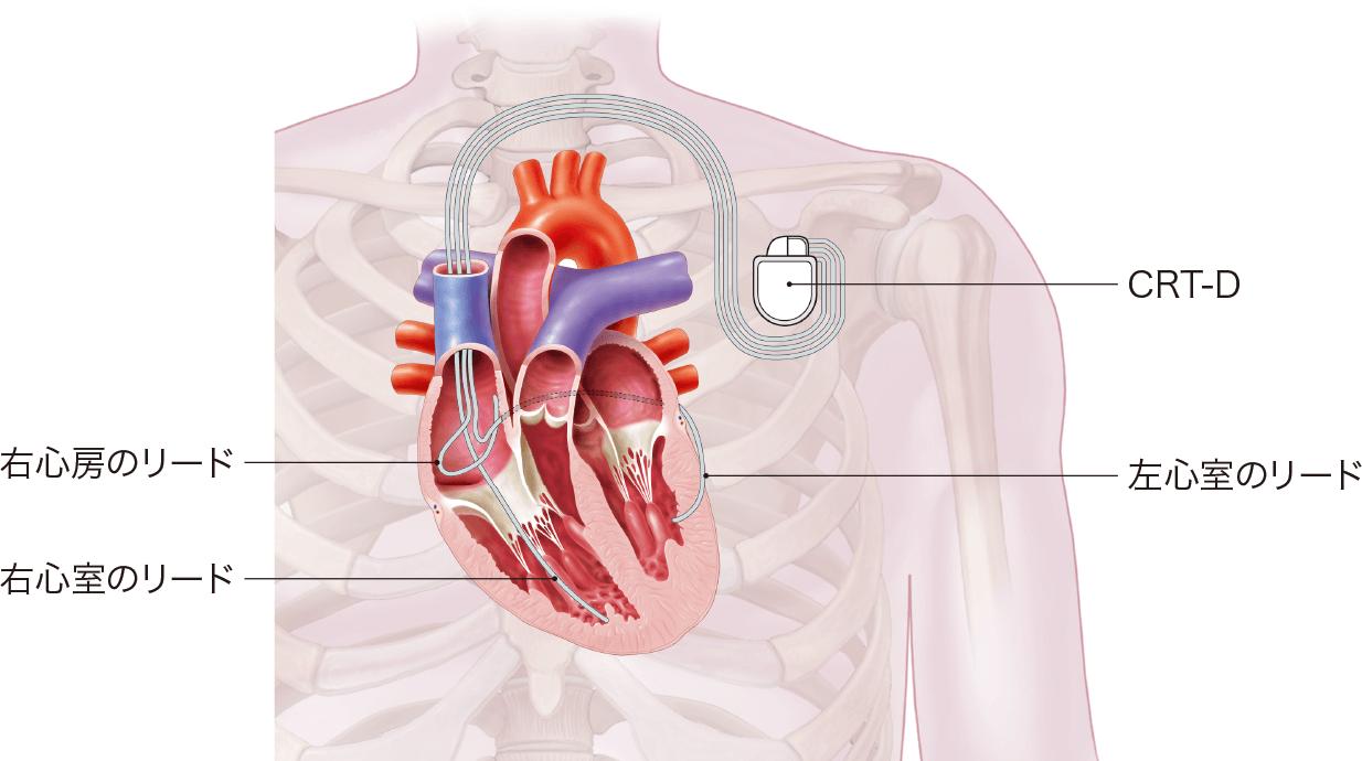 CRT-D、両心室ペーシング機能付き植込み型除細動器