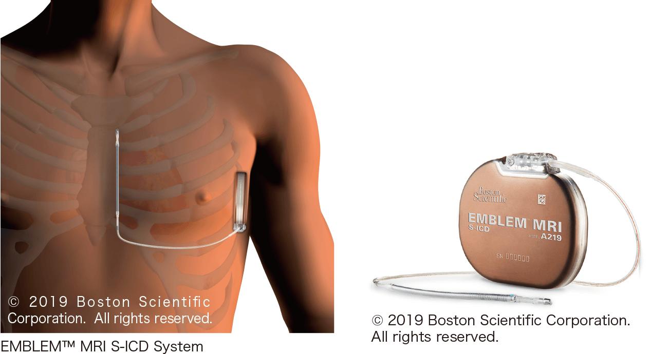 皮下植込み型除細動器(S-ICD)のしくみ