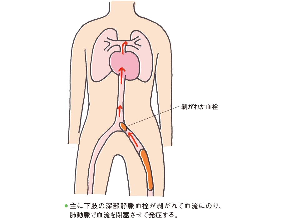 肺血栓塞栓症