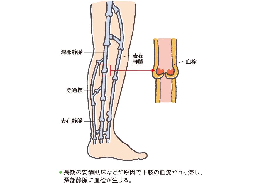 深部静脈血栓症を引き起こしやすい静脈