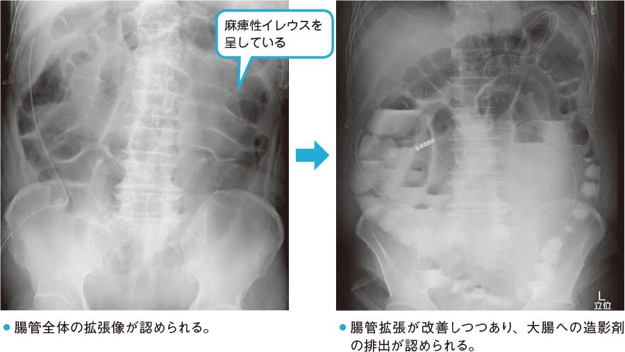 消化管の閉塞、蠕動麻痺を疑うX線所見