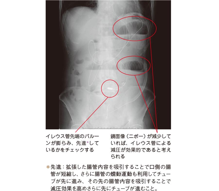 イレウス管挿入時のX 線画像(立位)