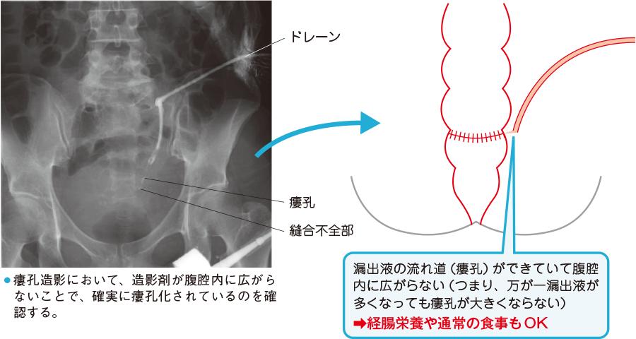 縫合不全部からの腸液の漏れが確実に瘻孔化した状態