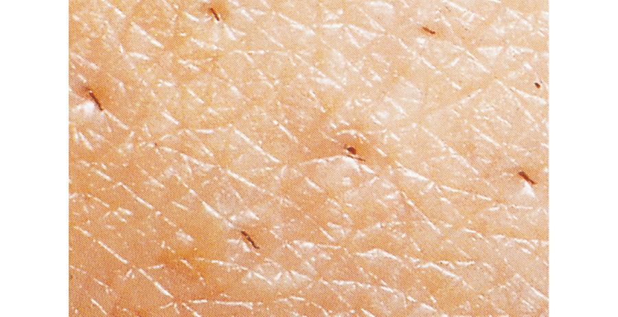 剃毛による皮膚損傷の例