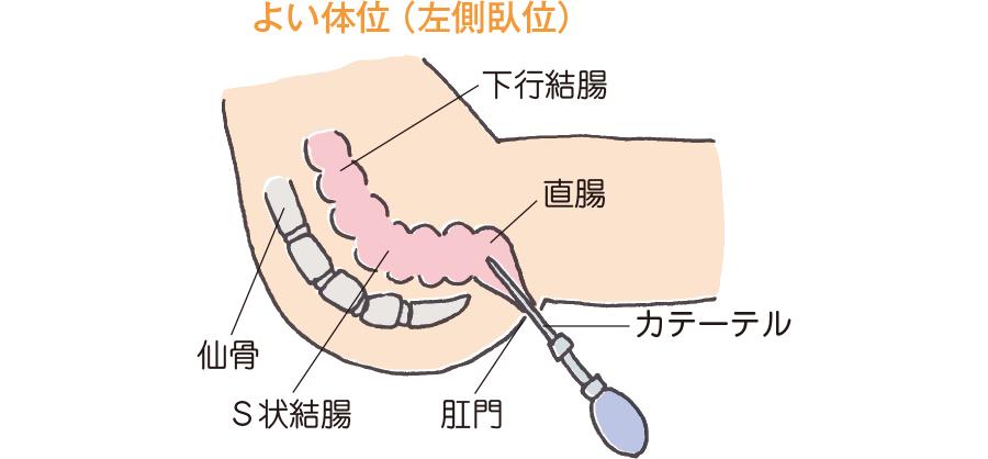 浣腸実施時の体位