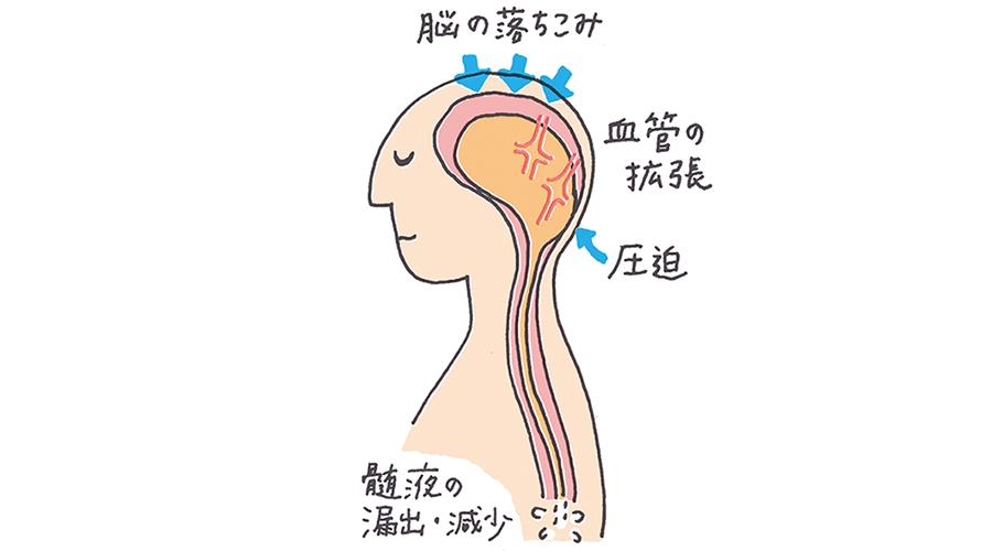 硬膜穿刺後頭痛を引き起こす原因