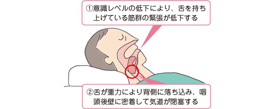 枕の使用が舌根沈下を招く