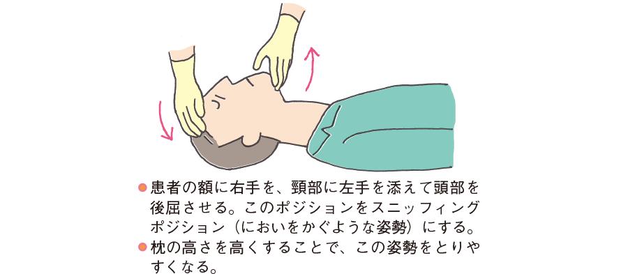頭部後屈・顎先挙上法