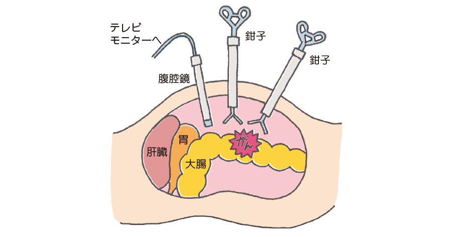 腹腔鏡下大腸摘出術のイメージ