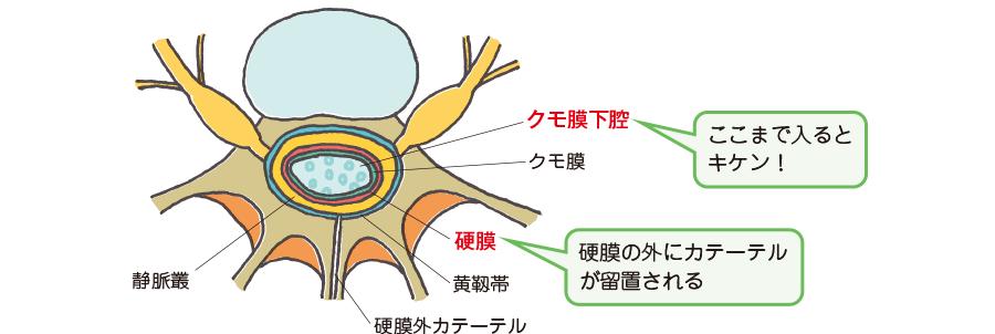 硬膜外カテーテル挿入部位とクモ膜下腔への迷入