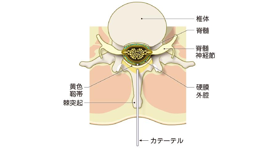 腰部の硬膜外腔