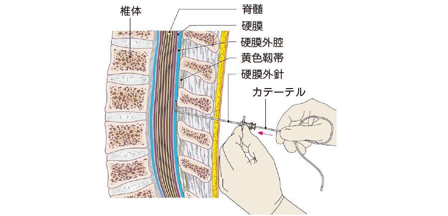 硬膜外カテーテルの挿入