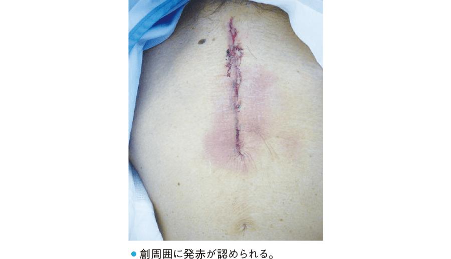 手術創の観察