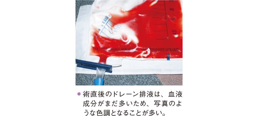 淡血性のドレーン排液