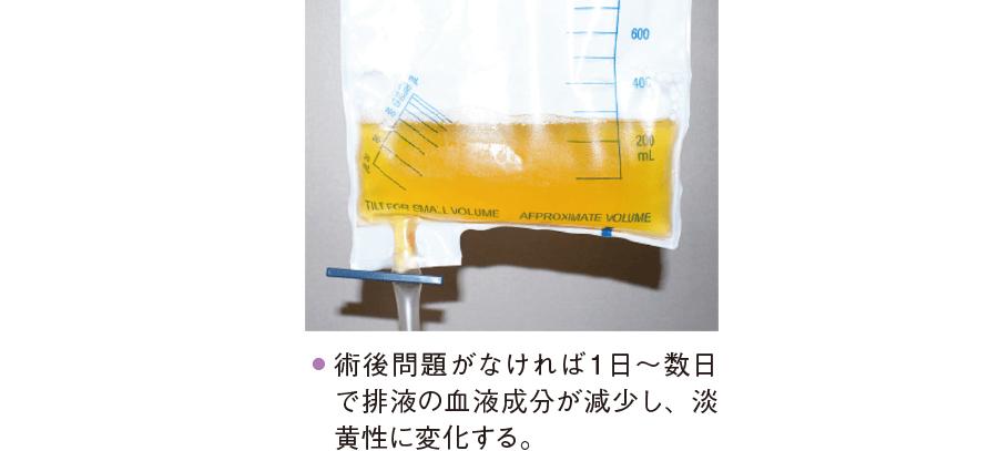 淡黄色のドレーン排液